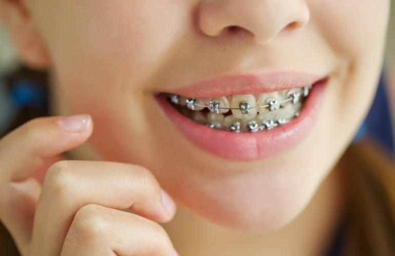 Как выпрямить зубы в домашних условиях взрослому